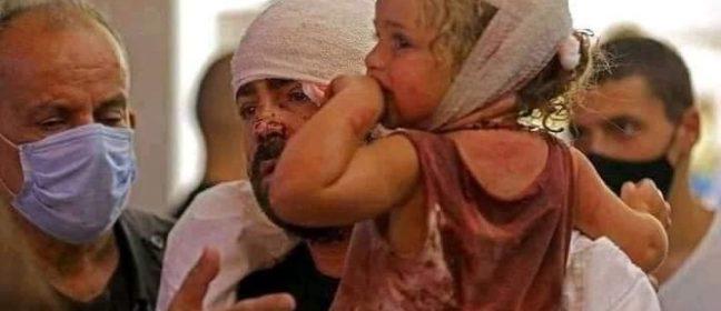 Българите в Кипър: Да помогнем на децата на Бейрут
